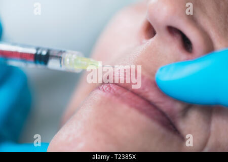 Hyaluronic injections. Mature woman receives hyaluronic acid injections for reducing wrinkles around lips and mouth- downturned mouth. - Stock Image