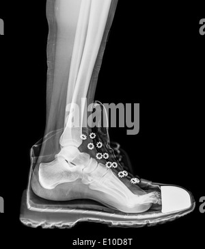 X-Ray of a foot and ankle in a running shoe - Stock Image
