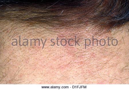 FOLLICULITIS - Stock Image