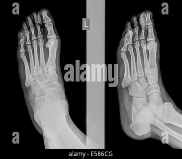 x-ray of a foot showing a fracture in the intermediate phalanx of the small toe on the left foot of a 30 year old - Stock Image