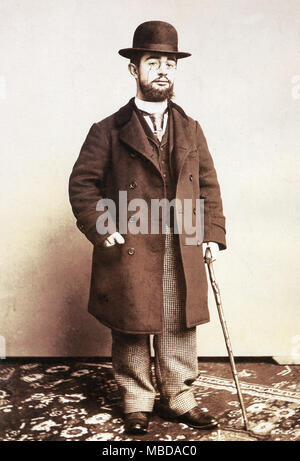 Henri de Toulouse Lautrec, 1895 portrait of the French painter, printmaker, draughtsman, caricaturist, and illustrator, famous for his bohemian lifestyle in turn-of-the-century Montmartre, who died in 1901 - Stock Image