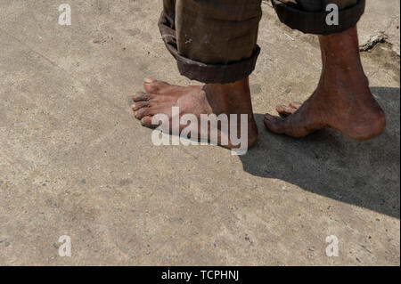 Poverty in Chennai, India, where a man walks with bare feet along the street - Stock Image