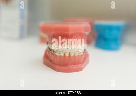 Orthodontic Model - White teeth with braces. Human jaw. Dentistry models. - Stock Image