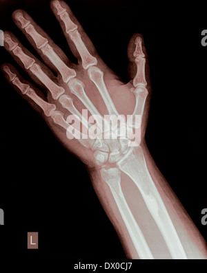 wrist of a 44 year old male patient with a Distal Ulna Fracture - Stock Image