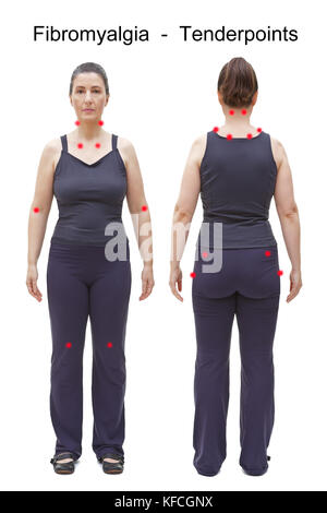 The 18 tender points of fibromyalgia indicated by red spots on the body of an woman, rear and frontal view - Stock Image
