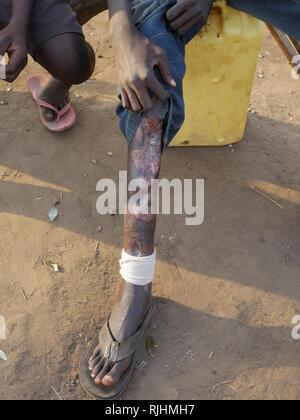 UGANDA - Palabek refugee settlement. - Stock Image