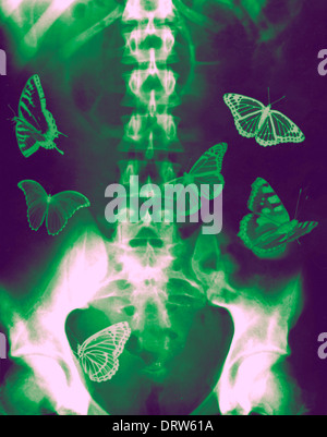 Concept - Butterflies in the stomach - x-ray of a human Abdomen with butterflies - Stock Image