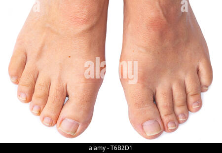 Feet of a woman with painful Hallux Valgus - Stock Image
