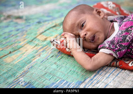 Disabled child at Chingari Rehabilitation Centre, Bhopal, India - Stock Image