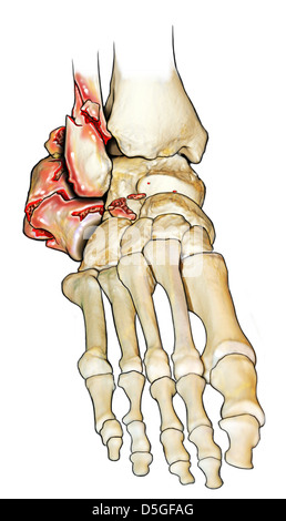 Displaced Comminuted Calcaneal Fracture - Stock Image