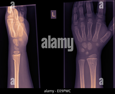 wrist and hand x-ray of a 4 year old infant male with a Distal radius fracture - Stock Image