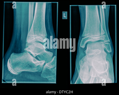Healthy X-ray of an ankle 12 year old male - Stock Image