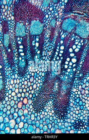 Greater Burdock, Arctium lappa, stem detail, brightfield photomicrograph - Stock Image