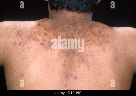 ACNE VULGARIS - Stock Image