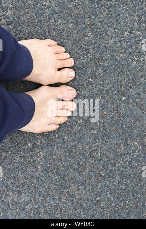 Bare feet with bunions or Hallux Abducto Valgus. - Stock Image