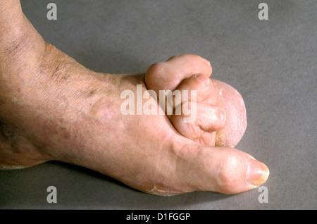 RHEUMATOID ARTHRITIS - Stock Image
