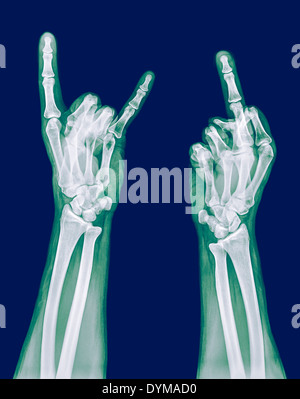 x-ray of a human hand making obscene hand gestures - Stock Image