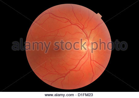 NORMAL RETINA RIGHT EYE - Stock Image