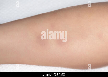 Bruises on the leg of a small child - Stock Image