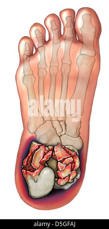 Comminuted Calcaneal Fracture - Stock Image