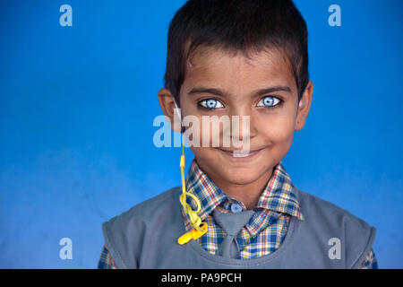 Deaf girl with extraordinary blue eyes  at Chingari Rehabilitation Centre, Bhopal, India - Stock Image