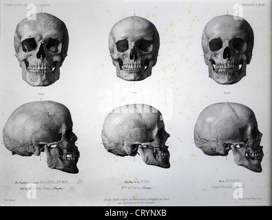 European Skulls, 1841, Louis-Auguste Bisson - Stock Image