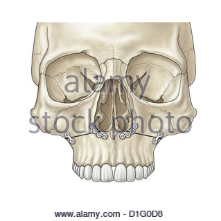 ILLUSTRATION - FACIAL FRACTURE REPAIR - Stock Image