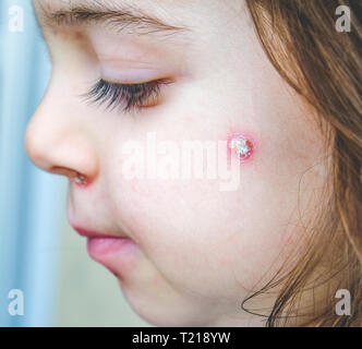 chicken pox spot details face close up spots baby face side cheek . - Stock Image