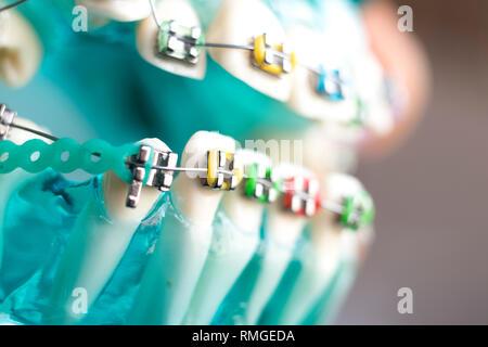 Dental metal braces teeth retainer aligners teaching orthodontics model. - Stock Image