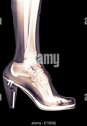 X-Ray of a foot and ankle in a high heel shoe - Stock Image