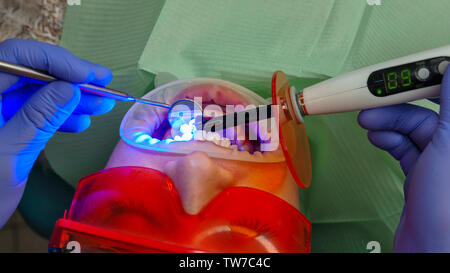Dentist makes dental seal of girl patient. Dental treatment. Dental clinic. Health care. - Stock Image
