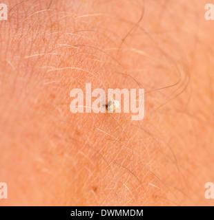 Bee Sting Stuck In Human Skin - Stock Image
