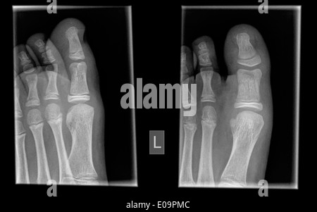 X-ray of the toes of a 10 year old patient with a mid phalanx fracture - Stock Image