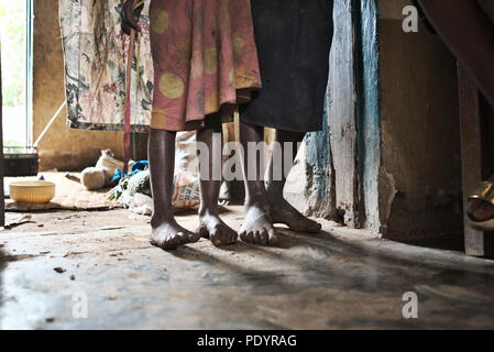Two barefoot young Ugandan children stand in their family home in southwest Uganda showing their bare feet and poverty - Stock Image