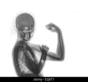 Woman's Power - We can do it - x-ray of a woman flexing her arm muscles - Stock Image