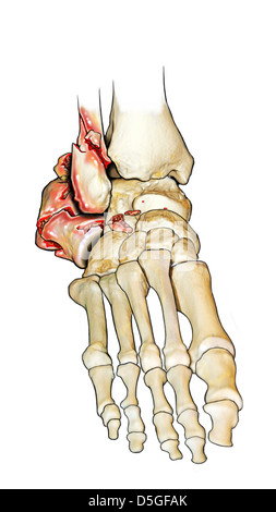 Dislocated Comminuted Fracture of Calcaneus - Stock Image