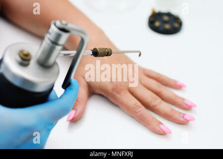 removal of warts in dermatology clinic - Stock Image