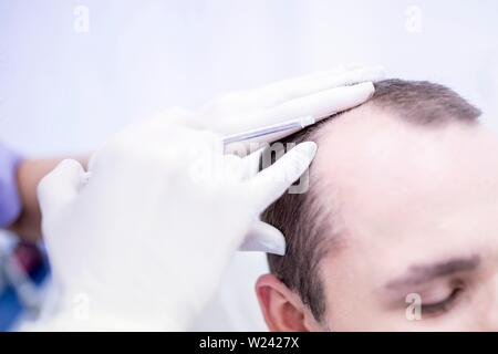 Young man having plasma re-application in scalp for trichology treatment, close-up. - Stock Image