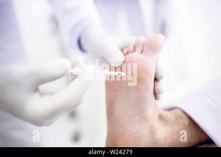 Dermatologist injecting botox on sole of feet to treat excessive sweating, close-up. - Stock Image