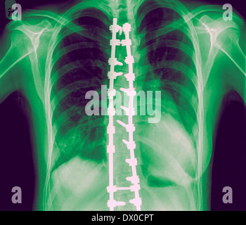 Spinal fusion, also known as spondylodesis or spondylosyndesis, x-ray of a 16 year old female front view - Stock Image