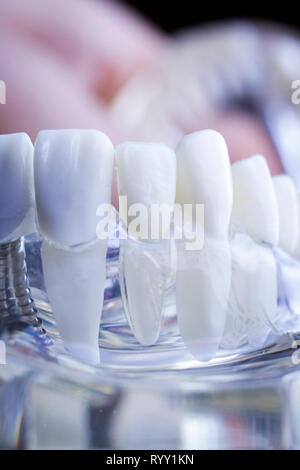 Dentist dental teeth teaching model showing titanium metal tooth implant screw. - Stock Image
