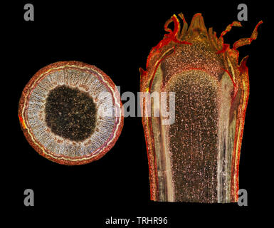 Sycamore stem & bud, TS & LS. Acer pseudoplatanus, one year old stage. Darkfield illumination. - Stock Image