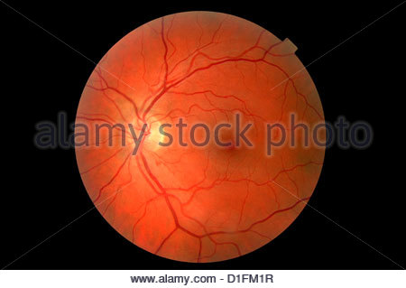 NORMAL RETINA LEFT EYE - Stock Image