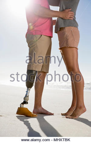 Close Up Shot Of Man With Artificial Leg Hugging Female Partner On Romantic Summer Beach Vacation - Stock Image