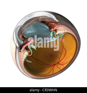 This medical exhibit features a cross section of the eye with a displaced intra-ocular lens. - Stock Image