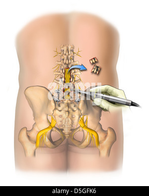 Multiple Lumbar Level Surgical Procedures and Bone Fusion - Stock Image