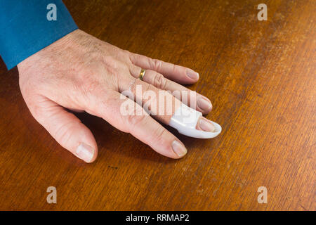 The left hand of a middle-aged man with a mallet finger injury to the middle finger. The injury, caused by a sudden jolt to the finger while the finge - Stock Image