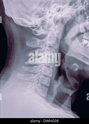 Cervical spine x-ray of a 40 year old male patient side view - Stock Image