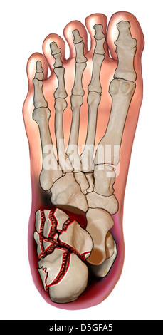 Calcaneal Fracture - Inferior View - Stock Image