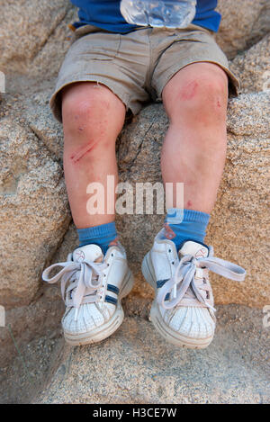 Child's scraped legs - Stock Image